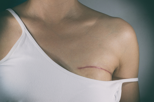 Breast Reconstruction After Radiation? Doctor Answers, T