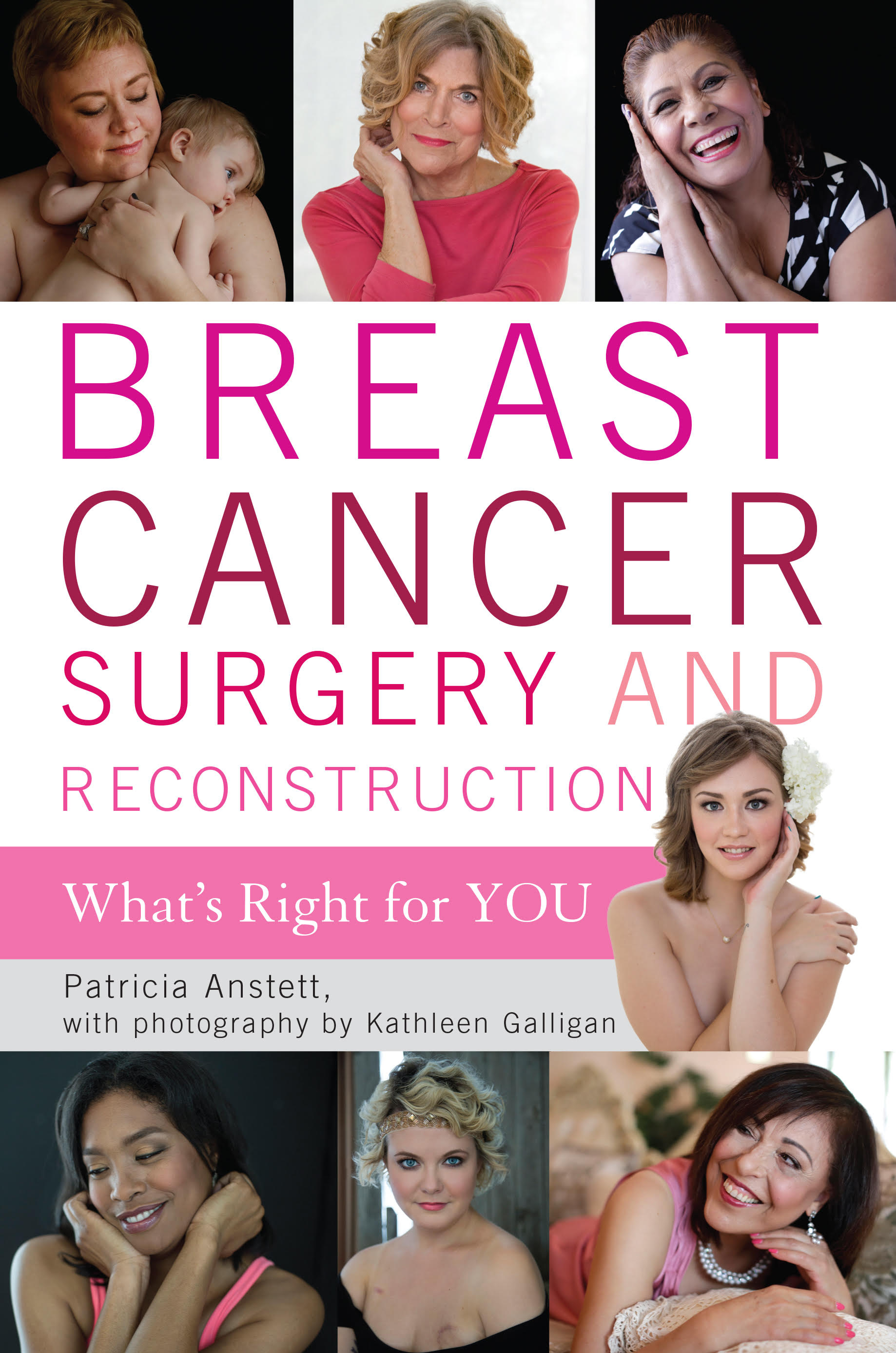 breast reconstruction stories