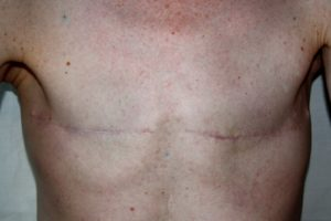 lumpectomy or mastectomy
