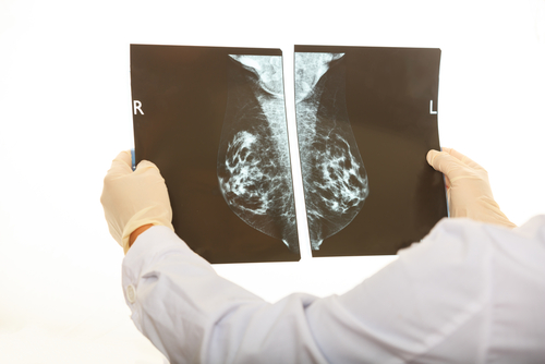 what is inflammatory breast cancer