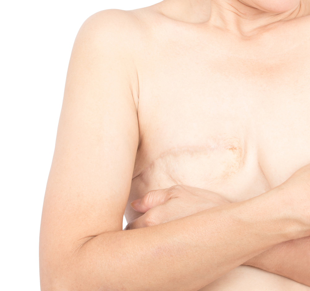 body after breast cancer